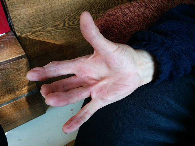 dupytrens contracture on the left hand