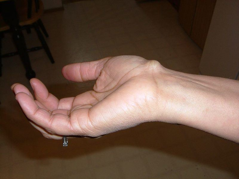 Ganglion Cyst. MSS offers ganglion cyst surgery in Michigan