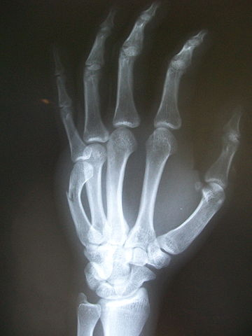 Xray of a boxer's fracture