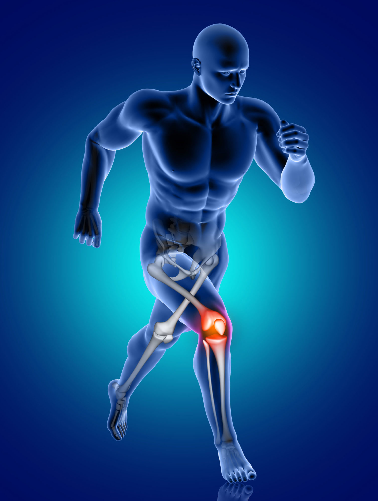 3D render of a male medical figure running with knee bone highlighted